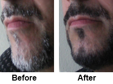 beard dye before and after