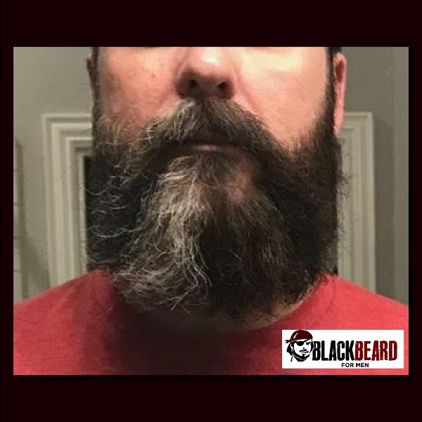 Blackbeard for Men Brent V Picture beard color before and after