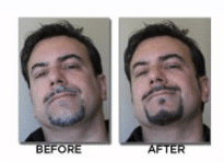 Blackbeard For Men Before & After
