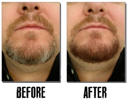 Blackbeard For Men Before and After Four