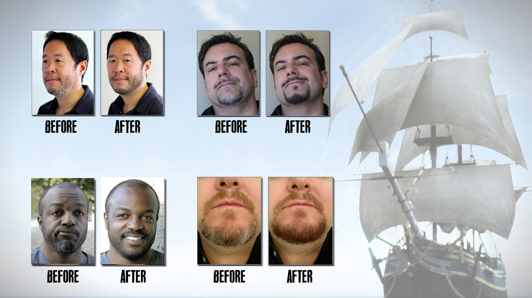 Before And After Beards
