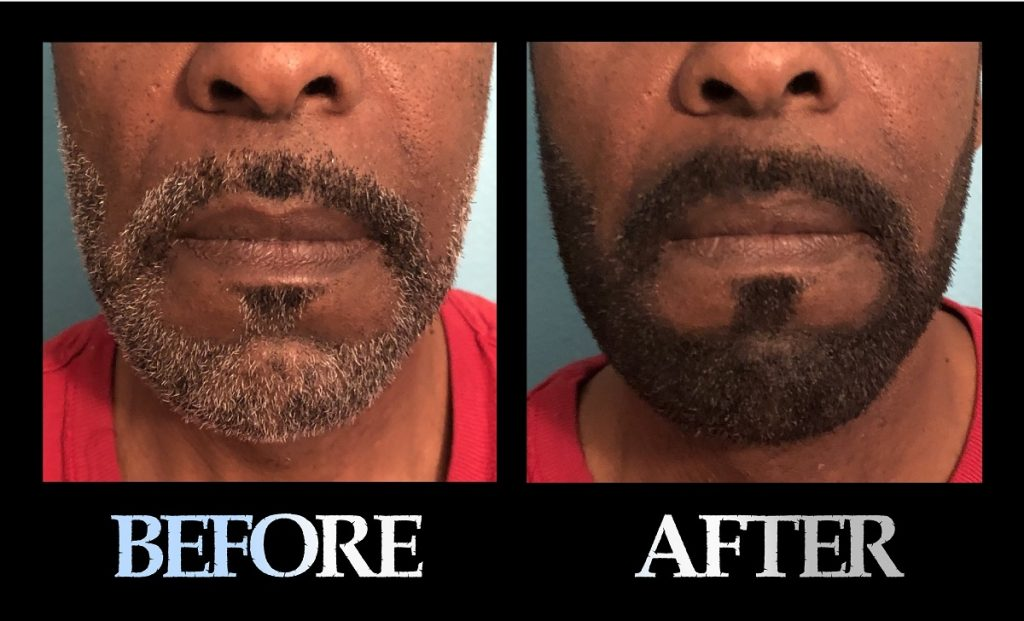 Blackbeard For Men beard color before and after 5