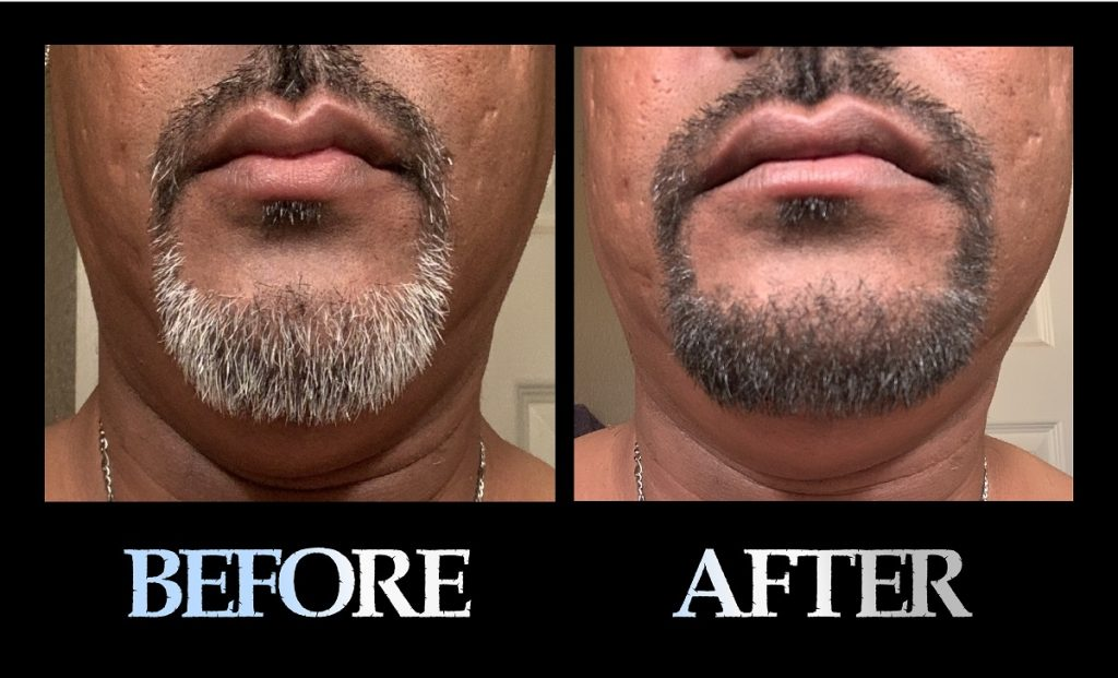 Blackbeard For Men beard color before and after 3